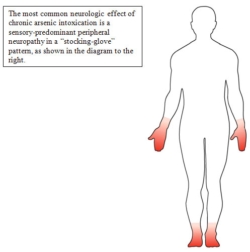 diagram illustrating a sensory-predominant peripheral neuropathy in a stocking-glove pattern