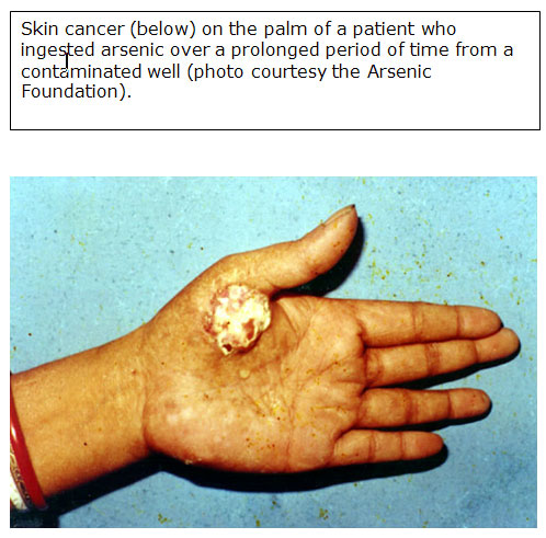 skin cancer on the palm of a patient