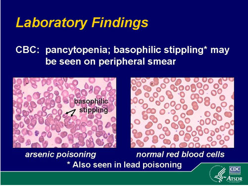 basophilic stippling as seen on a smear