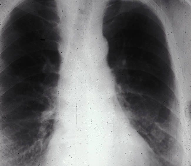 Asbestosis Chest X-ray