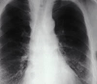 Figure 5. Chest radiograph