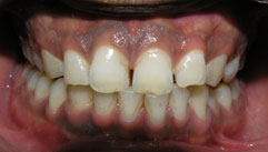 image of rotten gums