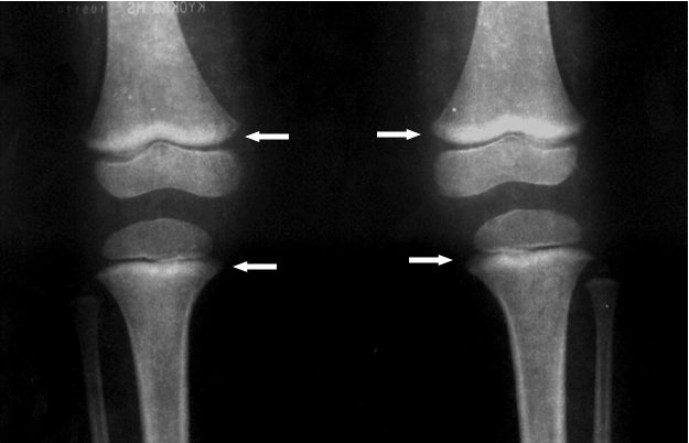 normal knee xray
